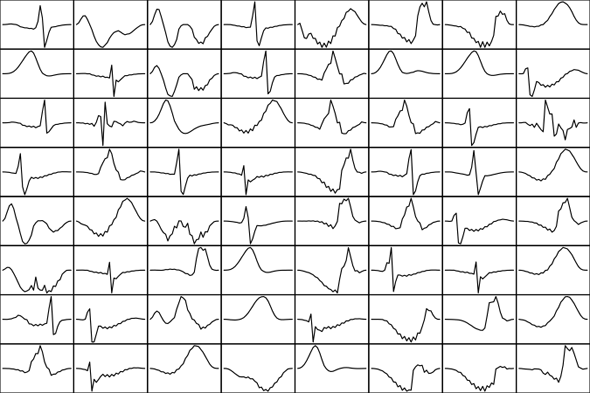 Dictionary of shapes from an EKG signal used as training data.